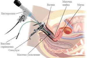 Office hysteroscopy